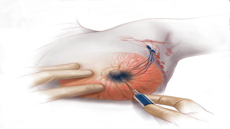بیوپسی پستان همراه با جراحی