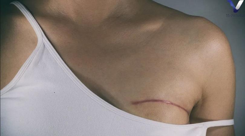 خطرات جراحی لامپکتومی   جراح پستان اصفهان