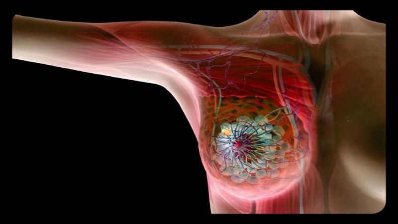 علائم بیماری فیبروکیستیک | جراح پستان اصفهان