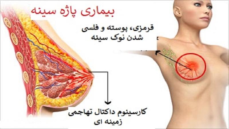 روش های تشخیص بیماری پاژه پستانی   جراح پستان اصفهان